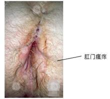 【女性肛门瘙痒有哪些原因】价格