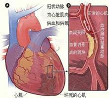 【婴儿的先天性心脏病的原因】价格,厂家,图片