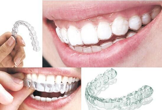 牙齿整形矫正多少钱