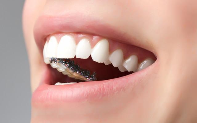 牙齿矫正的最佳年龄