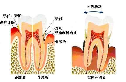 友好牙科:牙龈肿痛是什么原因造成的