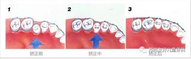 想要整齐漂亮的牙齿需要怎么做