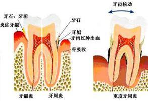 你知道怎么预防牙周病的发生吗