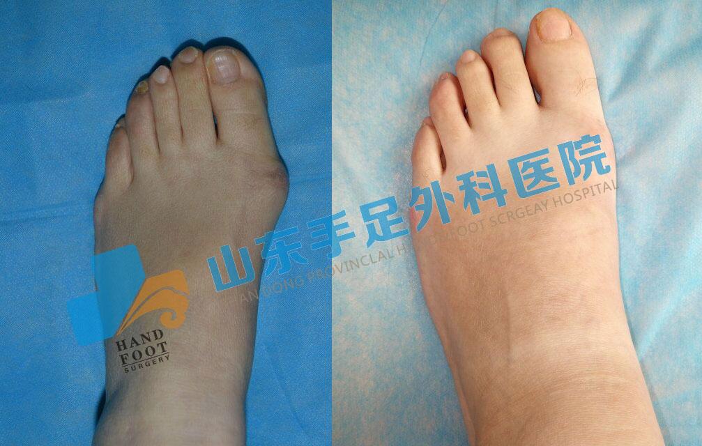 大脚骨的治疗办法是什么