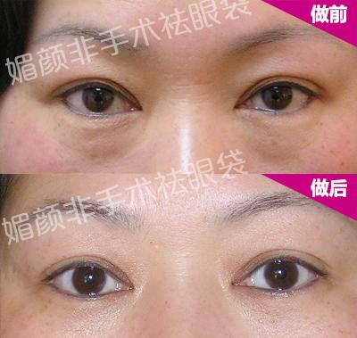 有眼袋该怎么消除 太原祛眼袋最有效的方法