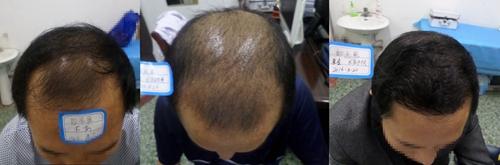 哪里做植发手术效果好
