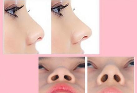 专业假体隆鼻 塑出挺拔鼻梁!打造立体自信美颜!成就美鼻曲线!医美项目合作