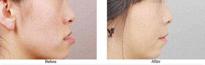 郑州牙科医院乳牙地包天不矫正可以吗