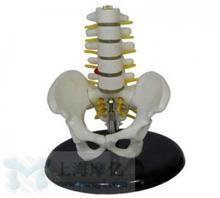 小型骨盆带五节腰椎模